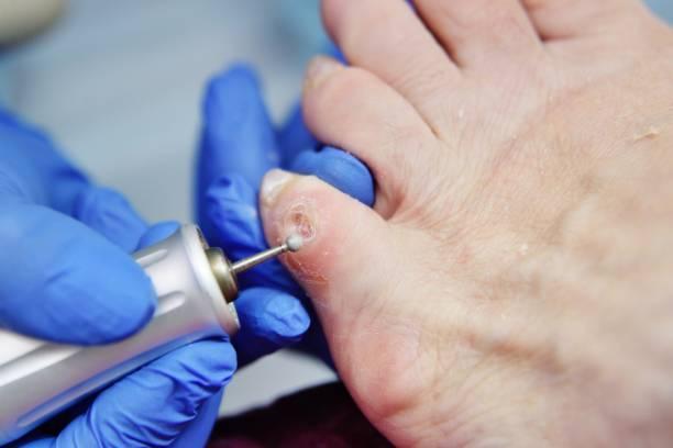 Eliminación de callos en clínica podológica