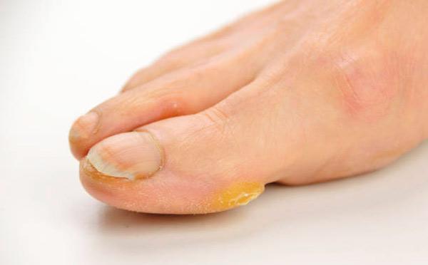 Callosidades en los pies, tratamiento y eliminación