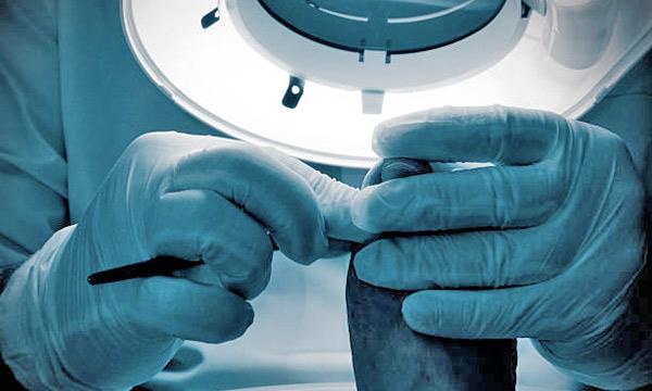 Cirugía podológica, uñas encarnadas, juanetes