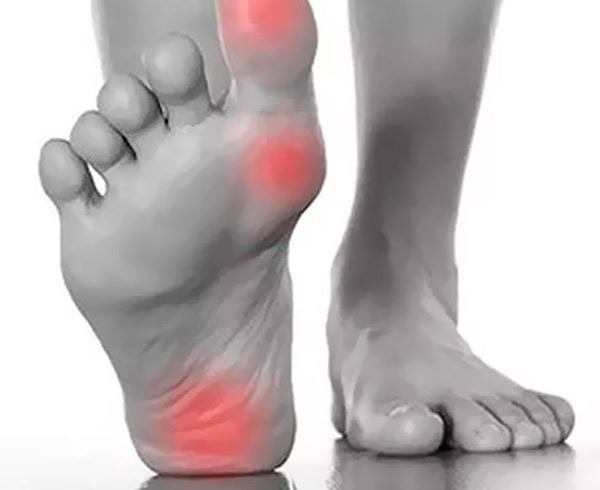 Estudio biomecánico del pie en Hortaleza Madrid