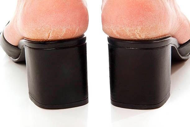 Eliminación de durezas en los pies y talones agrietados