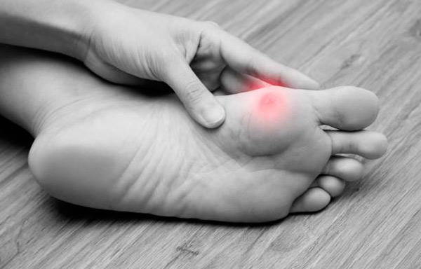 Podólogos en Hortaleza para eliminar callos y durezas en los pies