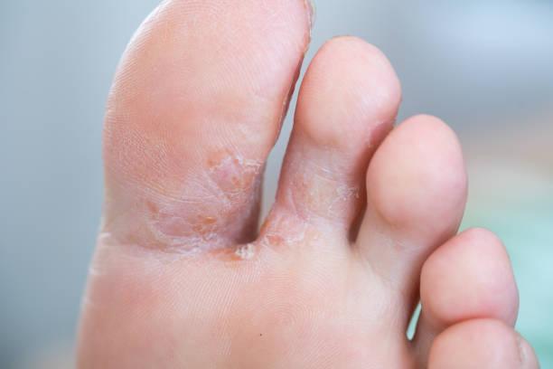 Tratamiento de hongos en los pies Clínica podológica Ginestal