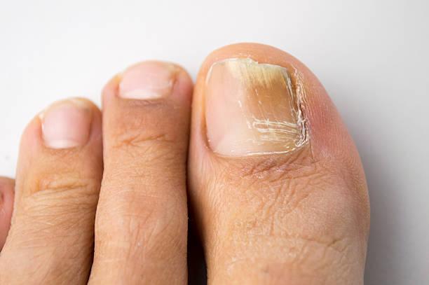 Tratamiento de hongos en las uñas en Clínica Ginestal