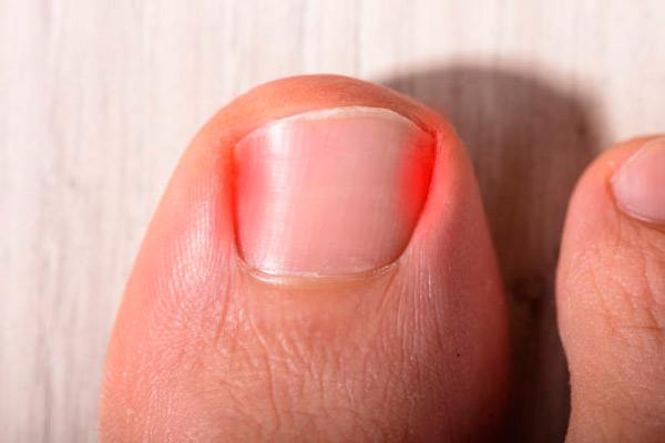 Podógodos en Hortaleza para tratamiento de uñas encarnadas