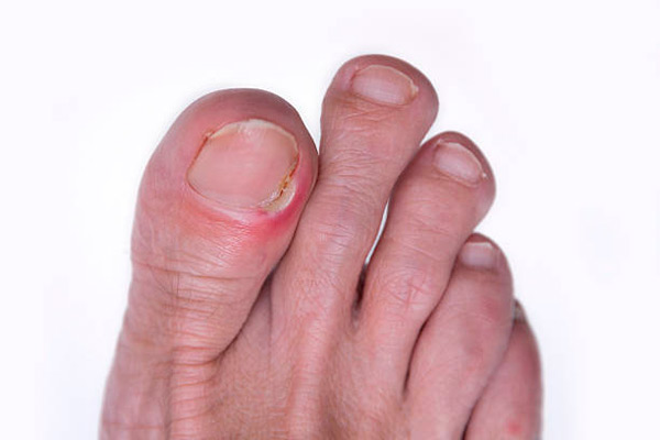 Cómo eliminar las verrugas en los pies