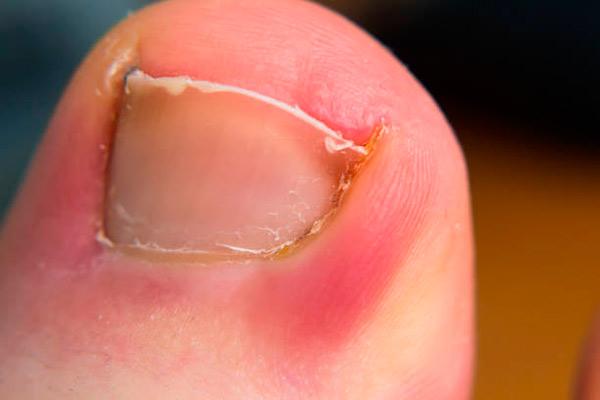 Tratamiento de uñas encarnadas en niños